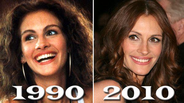 julia roberts botoksa estetik cerrahiye karşı ünlüler ve estetik